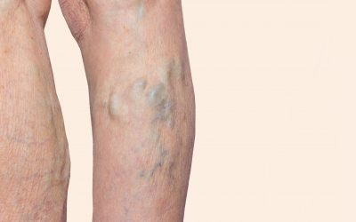 What's the Best Medical Center for Vein Treatment Near Hackensack?